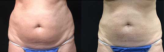 Before and after image of coolsculpted abdomen