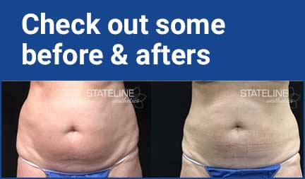 Check out some before and afters - image of torso before and after coolsculpting